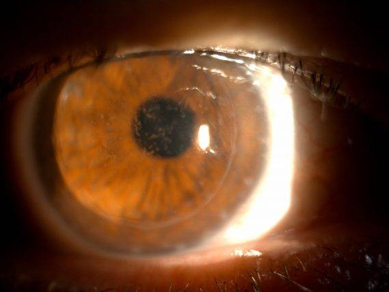 Corneal Dystrophy Treatment in Houston | Family Vision Solutions on macular corneal dystrophy, congenital stromal corneal dystrophy, map dot cornea, lattice corneal dystrophy type i, fleck corneal dystrophy, lisch epithelial corneal dystrophy, map dot syndrome, posterior polymorphous corneal dystrophy 2, granular corneal dystrophy type ii, map dot fingerprint treatment, map dot fingerprint disorder, map measles strains, posterior polymorphous corneal dystrophy 3, map dot atrophy, recurrent corneal erosion, map dot dysstrohy, corneal dystrophy of bowman layer, type ii, map dot fingerprint corneal epithelial, schnyder crystalline corneal dystrophy, posterior amorphous corneal dystrophy, x-linked endothelial corneal dystrophy, posterior polymorphous corneal dystrophy 1, congenital endothelial dystrophy type 2, subepithelial mucinous corneal dystrophy, gelatinous drop-like corneal dystrophy,